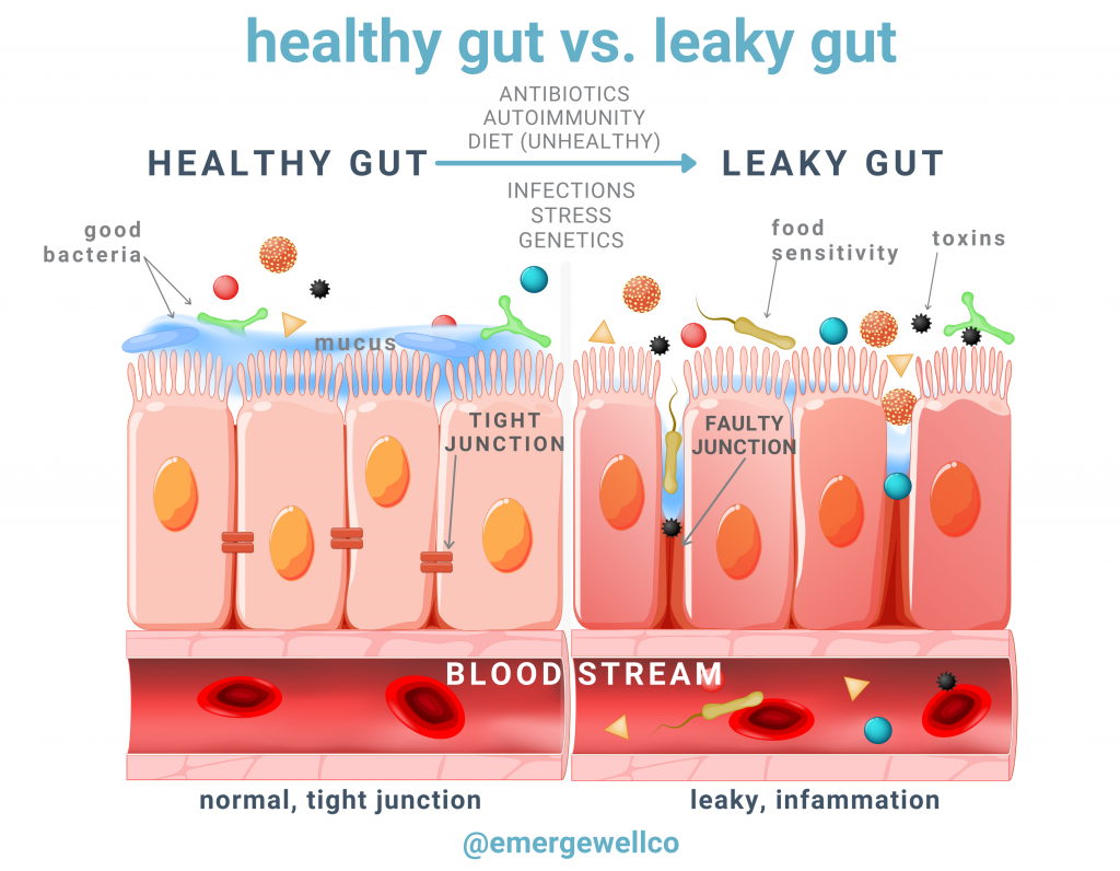 leaky guy vs healthy gut